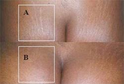 enlever les vergetures sur peau noire